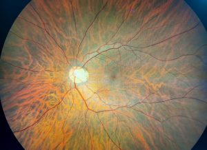 Photograph of Close Look at Retina of the Eye